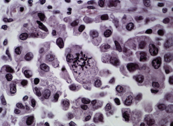Section of malignant connective-tissue tumour...