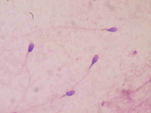 Scientists have developed microscopic robots that look and move like human sperm cells, shown here.